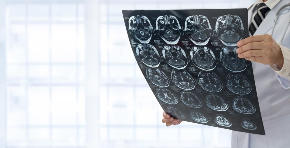 Doctor checks an X-ray of the brain