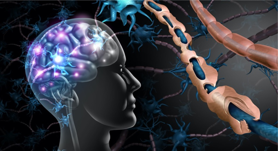 multiple-sclerosis-nerve-disorder-picture-id1159330487