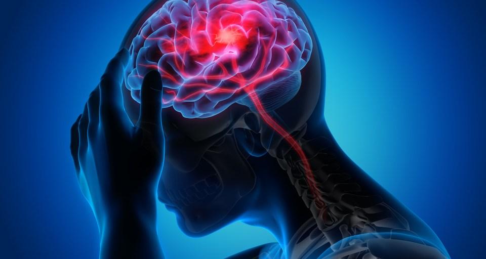Abstract of a TIA stroke