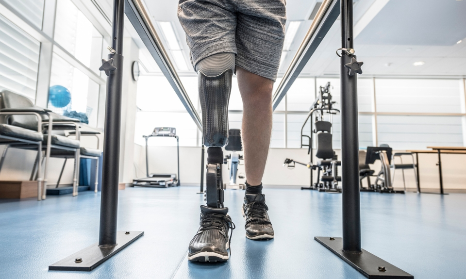 Man walks with prosthetic limb in parallel bars