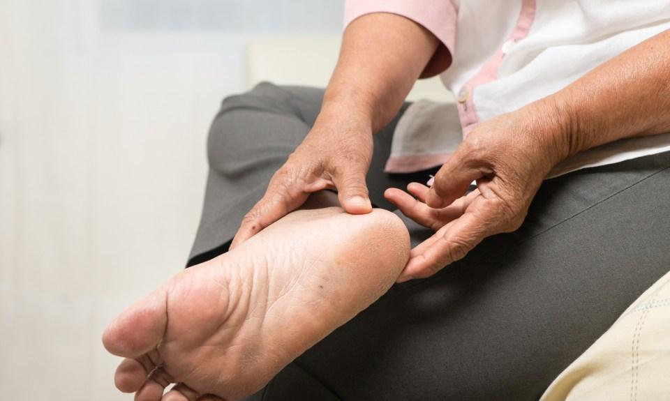 woman examining her diabetic feet